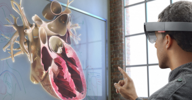 3D Medical Animation